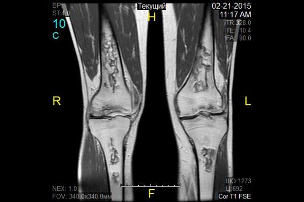 Мрт коленного сустава новокузнецкая афлутон для суставов цены