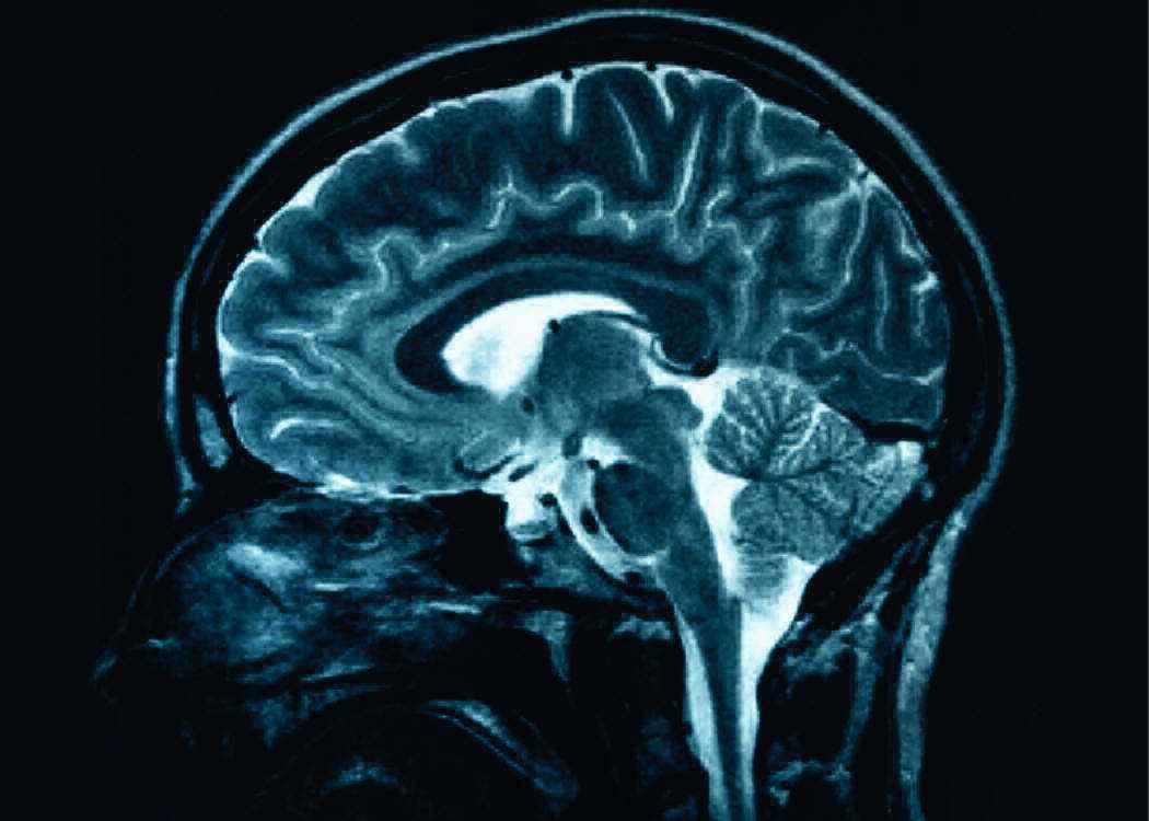 МРТ при эпилепсии