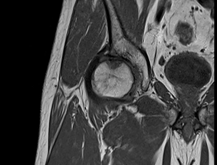 Мрт плечевого сустава в москве медэкспорт как лечить артроз коленного сустава 3 стадии